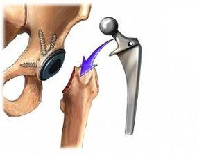Dureri la șold după endoproteze ars picioarele dureri de articulații