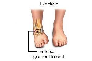 Ruptura de ligamente - Ruperea ligamentelor gleznei cât de mult de tratat