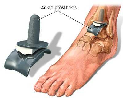 consecințele artritei articulației gleznei