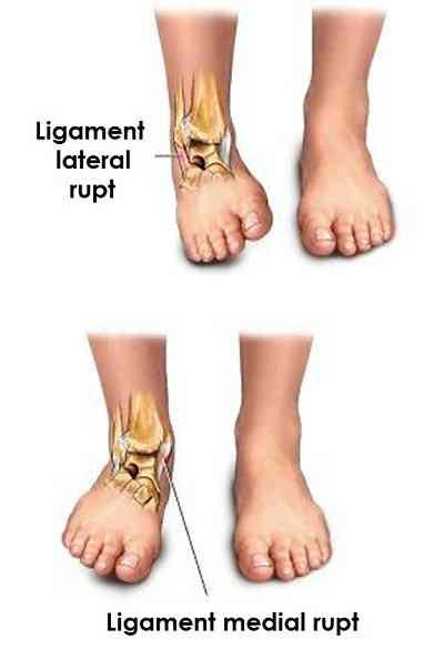 Dureri de spate mai mici si abdomen inferior la femeile din partea dreapta