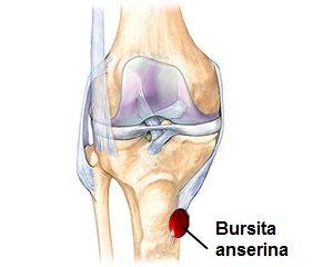 artroza tratamentului degetelor inflamația articulațiilor cotului în brațe