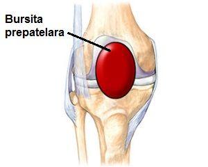 bursită suprapatellară pungă tratament articulația genunchiului