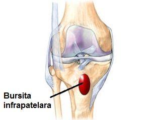 artroza deformantă a tratamentului mâinilor