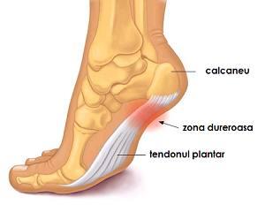 inflamația tendoanelor articulațiilor piciorului