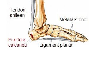 fractură tratamentul articulației gleznei