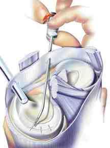 Artroscopie Menisc
