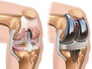 artroza deformată a genunchiului 3 grade)