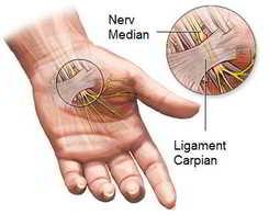 Sindrom de tunel carpian la mana