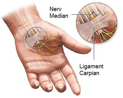 sindrom de canal carpian bilateral