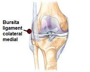 geluri cremă din bursita articulației genunchiului