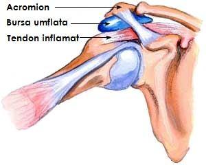 tratamentul cu unguent pentru bursita umărului ce conține condroitină glucozamină