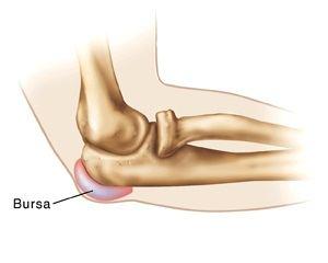 inflamația articulației bursitei cotului