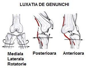 luxația articulațiilor tratamentului piciorului se crispa fara dureri de cot