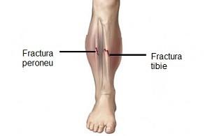 ce cauzează dureri de tibie