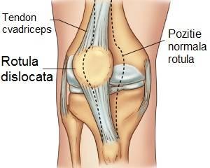 luxația simptomelor și tratamentul genunchiului