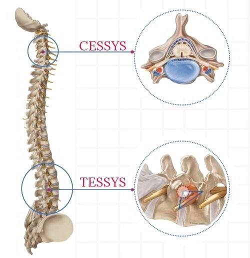 Operatii hernii discale si cervicale_tessys_cessys